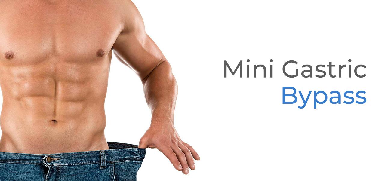 http://www.antiobesitycenter.com/wp-content/uploads/2018/08/banners-obesity-minibypass-ing.jpg